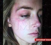 Ενδοοικογενειακή βία επικαλείται η σύζυγος του Depp – Η φωτογραφία που κάνει το γύρο του διαδικτύου