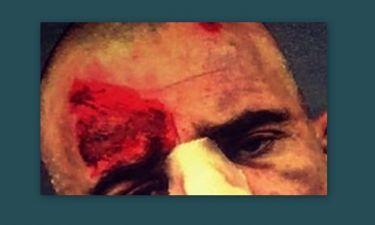 Πασίγνωστος ηθοποιός κόντεψε να σκοτωθεί στα γυρίσματα !Σοκάρουν οι φωτογραφίες του μετά το ατύχημα