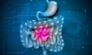 Ορθοκολικός καρκίνος: Σε ποια ηλικία πρέπει να ξεκινά ο προληπτικός έλεγχος