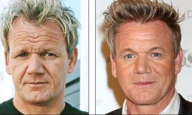 Τι έκανες στο πρόσωπό του Gordon;