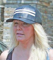 Σοκαριστικές φωτό ηθοποιού με παραπανίσια κιλά, πρησμένο πρόσωπο και τραυματισμό στη μύτη