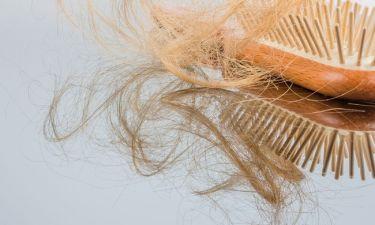 Απώλεια μαλλιών: 3 φυσικές θεραπείες που πρέπει να δοκιμάσεις