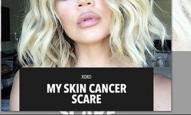 Μιλά πρώτη φορά για την καρκινική ελιά στην πλάτη:«Μου αφαίρεσαν 20 εκατοστά δέρματος από το σημείο»