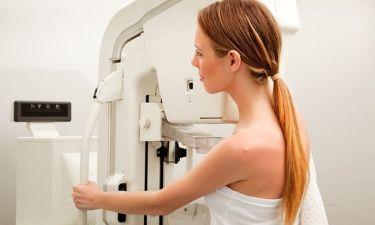 Πόσο συχνά πρέπει να κάνετε μαστογραφία αν έχετε πυκνούς μαστούς