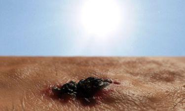 Καρκίνος δέρματος: Τα προειδοποιητικά σημάδια μέσα από φωτογραφίες