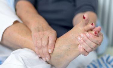 Πρησμένα πόδια: Πότε «δείχνουν» χρόνια φλεβική ανεπάρκεια