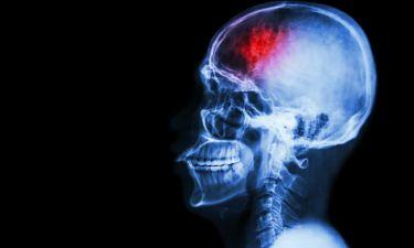 Εγκεφαλικό επεισόδιο: Η διατροφή που το προλαμβάνει