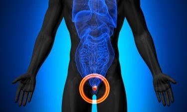 Καρκίνος του προστάτη: Τα πρώιμα συμπτώματα που οι περισσότεροι άνδρες αγνοούν