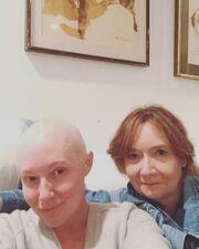 Shannen Doherty: Σοκάρει η εικόνα της μετά τη χημειοθεραπεία