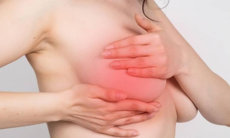 Μαστεκτομή: Είναι εφικτή η διατήρηση της θηλής;