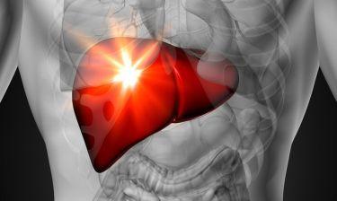 Λίπος στο συκώτι: Η διατροφή που μειώνει στο μισό τον κίνδυνο