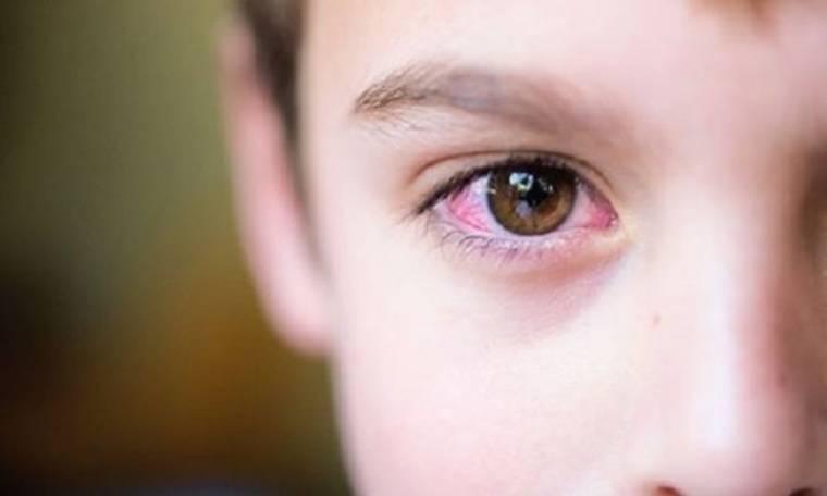 Συναγερμός στα σχολεία από τα κρούσματα εμφάνισης ψείρας στα βλέφαρα των παιδιών