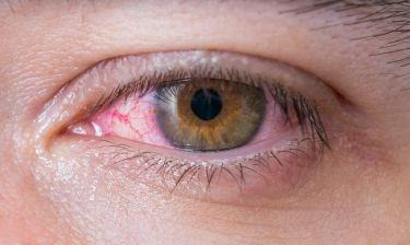 Κοκκίνισμα ματιών: Ποιες είναι οι πιθανές αιτίες