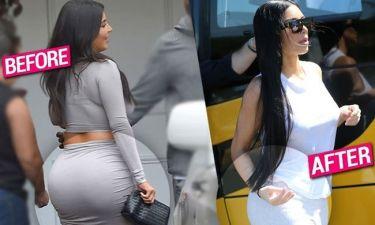 Η Kim Kardashian  αφαίρεσε τα εμφυτεύματα σιλικόνης στα οπίσθιά της