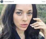Η φωτό γνωστής ηθοποιού με τα παραφουσκωμένα χείλη, που κάνει το γύρο του διαδικτύου
