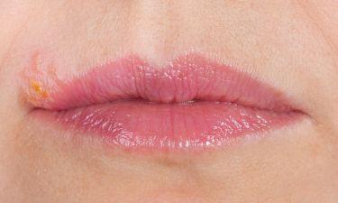 Λειχήνας στόματος: Ανακουφιστείτε με το πιο απλό γιατροσόφι