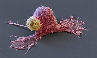 Μοναδικές φωτογραφίες αποτυπώνουν την επίθεση του οργανισμού ενάντια στα καρκινικά κύτταρα