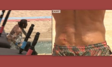 Survivor: «Τσακίστηκε» ο Γιάννης Σπαλιάρας στο αγώνισμα