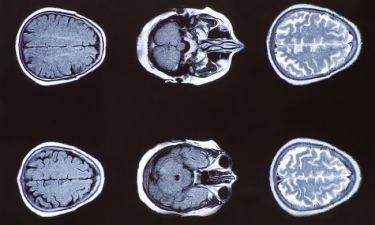 Διαβήτης & παχυσαρκία: Ποιες αλλοιώσεις προκαλούν στον εγκέφαλο
