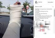 Το πρώτο μήνυμα της Χατζηβασιλείου μετά το ατύχημα και η φωτογραφία με το μπαταρισμένο πόδι