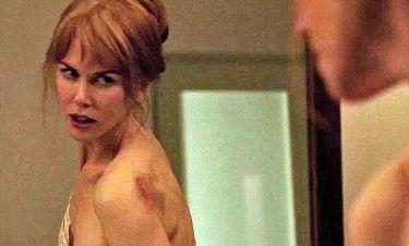 Nicole Kidman: «Όταν έπαιζα στη σειρά 'Μικρά μεγάλα ψέματα' είχα πραγματικές μελανιές»
