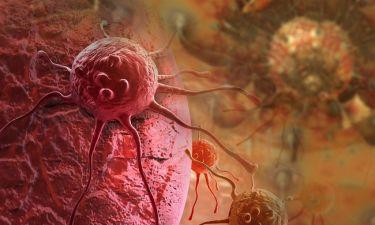 Καρκίνος παχέος εντέρου: Το φρούτο που εξοντώνει τα καρκινικά κύτταρα