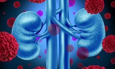Καρκίνος νεφρού & ουροδόχου κύστης: Ο παράγοντας που αυξάνει τον κίνδυνο κατά 77%