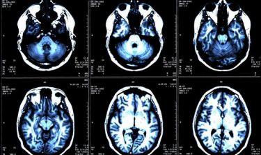 Σκλήρυνση κατά πλάκας: Αντιοξειδωτική ουσία επιβραδύνει την εξέλιξη της νόσου