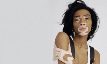 Το μοντέλο με την λεύκη δείχνει το σώμα του και στέλνει το δικό τους μήνυμα: «Είμαι όμορφη γιατί...»