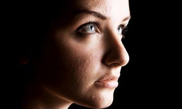 Ακμή: Τα θρεπτικά συστατικά που συμβάλλουν στην αντιμετώπισή της