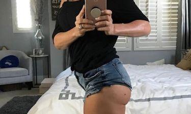 Ηθοποιός απoκάλυψε στα social media: «Έχω καρκίνο στο δέρμα. Έτσι είναι το μελάνωμα»