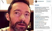 Ο Χιου Τζάκμαν μιλά δημόσια για την περιπέτεια υγείας του στο Instagram