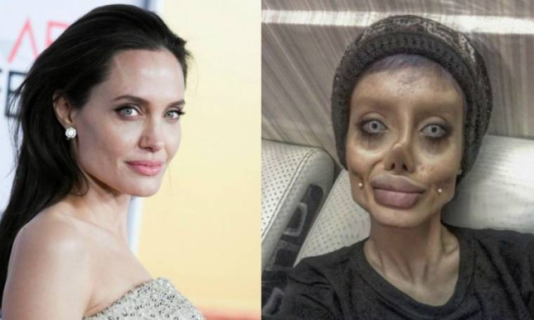 Ιρανή έκανε 50 πλαστικές για να μοιάσει στην Jolie και το αποτέλεσμα είναι τρομακτικό