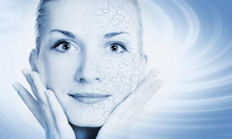 Ξηροδερμία: 5 τρόποι να προστατέψεις το δέρμα σου τον χειμώνα