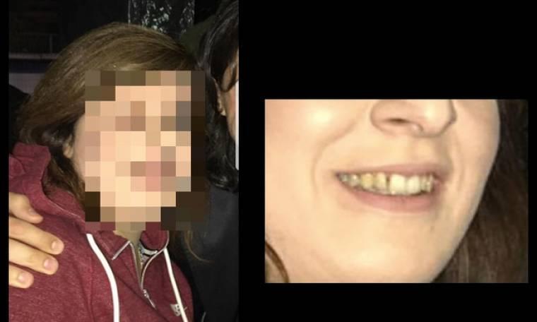 Ιου.Ελληνίδα τραγουδίστρια με άπλυτα δόντια (φωτο) (Nassos blog)