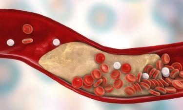 Γρήγορο τεστ για την υγεία των αρτηριών