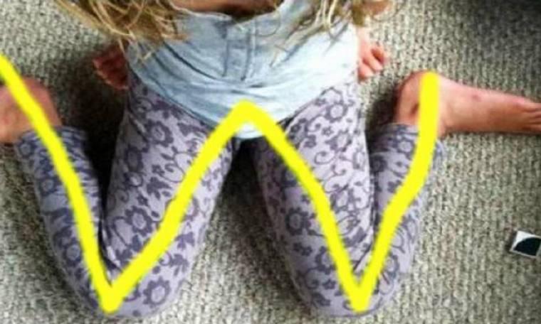 Προσοχή: Αν δείτε το παιδί σας να κάθεται έτσι, σταματήστε το αμέσως! (video)