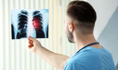Οι ουσίες που καταστρέφουν τους πνεύμονες - Δείτε σε ποια προϊόντα βρίσκονται