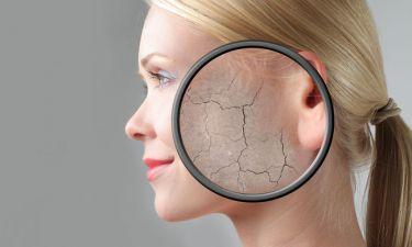 Δερματολογικά συμπτώματα που φανερώνουν πρόβλημα στον θυρεοειδή (εικόνες)