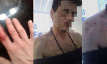 Εικόνες ΣΟΚ. Θύμα ξυλοδαρμού Έλληνας τραγουδιστής (Nassos blog)