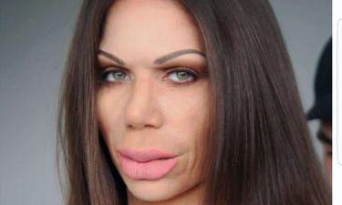 Κατερίνα Στικούδη: Το μήνυμά της προς τις γυναίκες, που παραμορφώνονται από τις πλαστικές