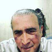 Με μώλωπες στο πρόσωπο ο Λάκης Λαζόπουλος. Τι συνέβη στον ηθοποιό;