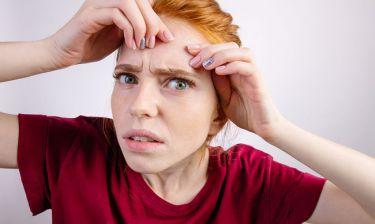 Εσωτερικά σπυράκια: Γιατί εμφανίζονται και πώς θα απαλλαγείτε