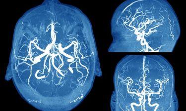 Ανεύρυσμα εγκεφάλου: Τα συμπτώματα SOS που πρέπει να γνωρίζετε (φωτο)