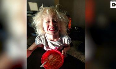 Το κοριτσάκι με τη σπάνια μετάλλαξη και τα Μαλλιά Αϊνστάιν!