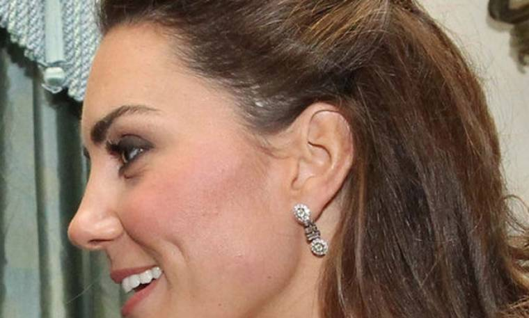 Πώς απέκτησε η Kate Middleton αυτήν την μεγάλη ουλή στο πρόσωπό της;