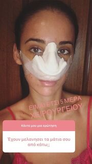 Τζούλια Καραγιάννη: Αυτός είναι ο πραγματικός λόγος που έκανε πλαστική επέμβαση στη μύτη!