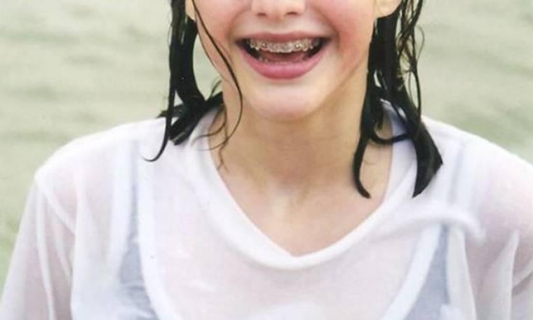Κι όμως! Το κοριτσάκι της φωτογραφίας με τα σιδεράκια, είναι γνωστή ηθοποιός! Την αναγνωρίζετε;