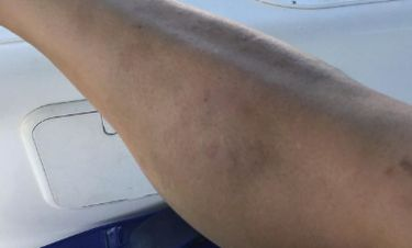 Ατύχημα στη θάλασσα για την πρώην του George Clooney – Τι την τσίμπησε;