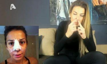 Το πριν και το μετά της Χατζίδου: Η πλαστική επέμβαση και τα ενέσιμα στο πρόσωπό της